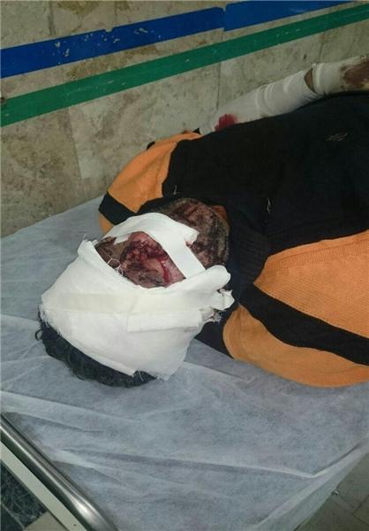 حمله پلنگ به چوپان در آلاشت